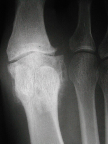 x-ray shows foot pain due to loss of joint space great toe joint