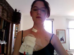 Photo 32 (Neuro Detour) Tags: pain photobooth surgery tm chronicillness experimentaltreatment melaniemiller permacath transversemyelitis raredisease neurodetour