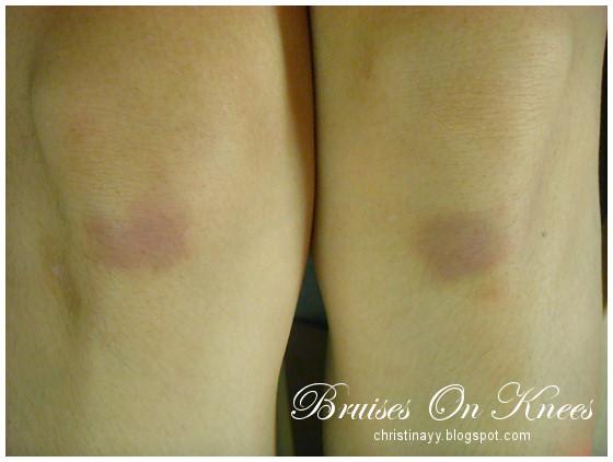 Bruises on Knees