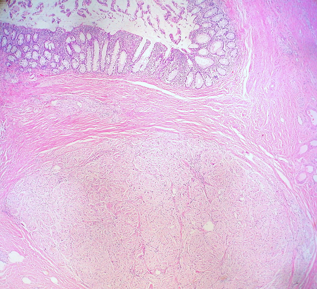 Granular Cell Tumor, Sigmoid Colon