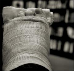 me, ablaze (mlsjs) Tags: blackandwhite bw foot toes wounded books trf cast bandages barnesandnoble todaysrandomfact