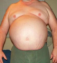 +22lbs Since Dec (bub_bub) Tags: man gut boobs fat feeder stretch marks belly fatty beerbelly chubby obese blubber fatman bigbelly beergut moobs bhm weightgain gainer feedee apronbelly