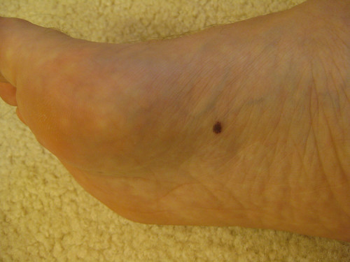 If you see a spot like this or anything unusual on your feet, visit a podiatrist to rule out cancer