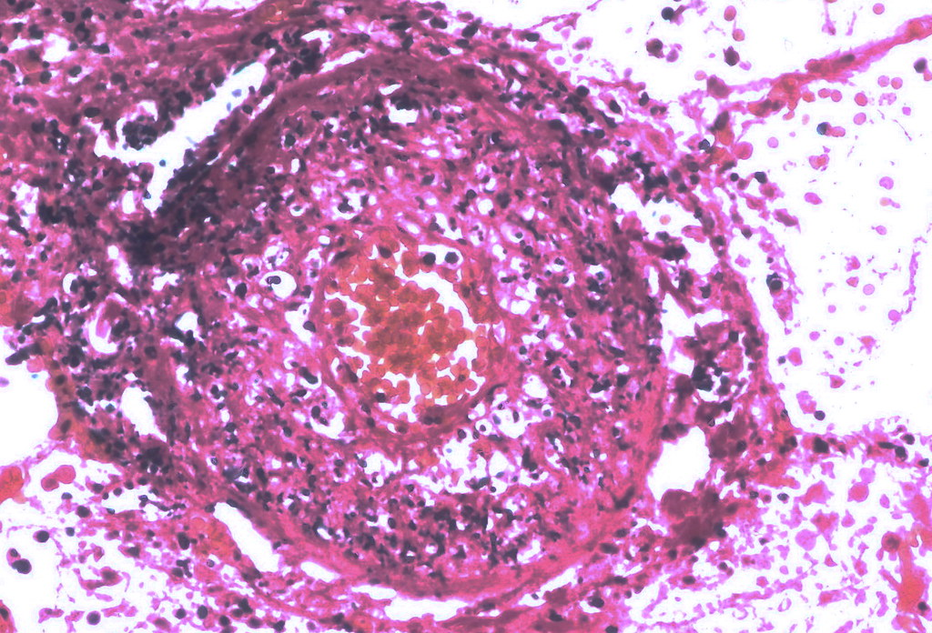 Septic vasculitis