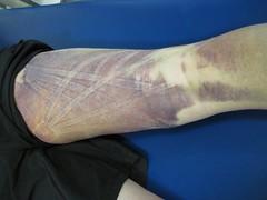 Kinesio Taping For Bruising
