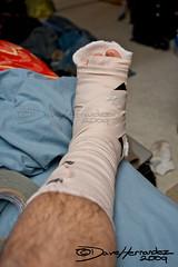 You know your a photographer when... (JawsofLife252) Tags: cast gaffer ankle splint sprain gaffertape