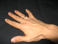 Ring on the Right Hand