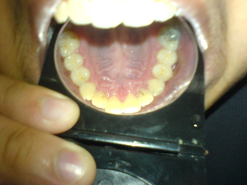 Rotting tooth.