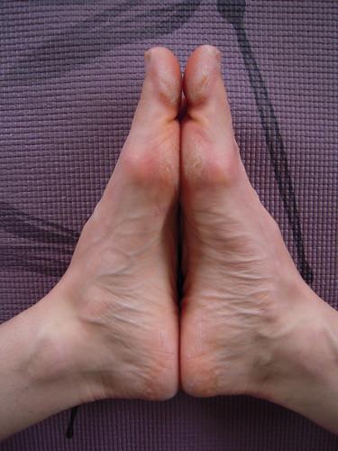 Cobbler's feet