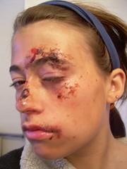 facial scabs