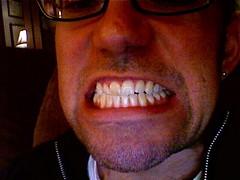 Teeth at Flickr.com