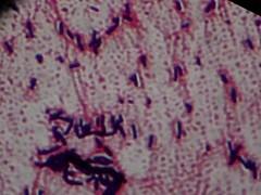 Bacilos - bacillus ((biophotos)) Tags: gram microscopic biology bacteria microbiology microscopy biologia microscopio bacterias microbiologia microscopia