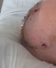 big scar