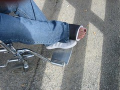 l_4de1d57d42387b453d23ea61f9bdfb1e (chilltown1) Tags: broken toes cast ankle