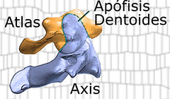 apófisis odontoides