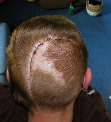 staples in my head (JSH) Tags: ouch skull hurt accident brain surgery emergency cranium scar staples trauma wounds sutures neurosurgery lifeflight tbi brainsurgery braindamage braintrauma bergholz atvaccident