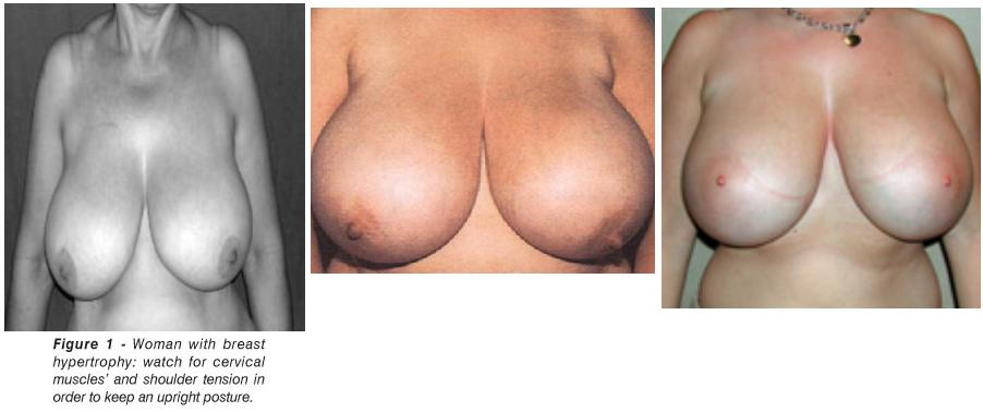 virginal breast hypertrophy