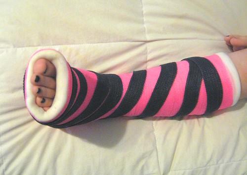 broken toe. a roken toe