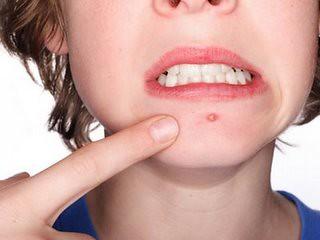 Recetas caseras para el acné