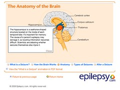 Brain - The Hippocampus - Epilepsy (Whiskeygonebad) Tags: fall brain accidents health nyu hospitals epilepsy seizures granmal tonicclonic