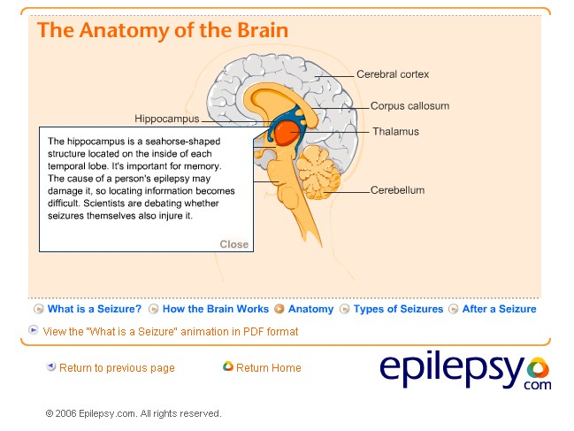 2.1 Children with Nervous System Disorders: Epilepsy — ECI