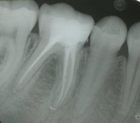 Endodoncia. Dolor, doler, doliendo - Dr. Juan Balboa