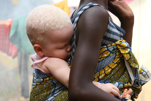 African albino girl