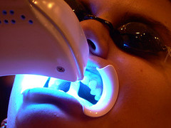 Reno Laser Teeth Whitening