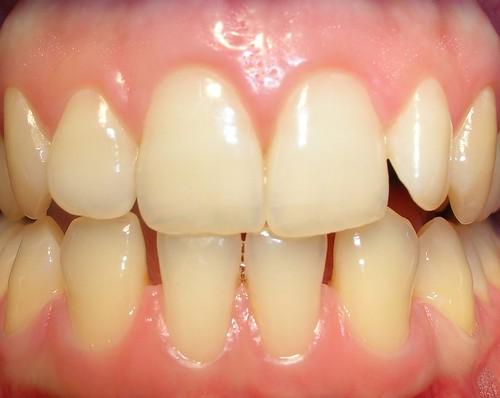 Gingivitis marginal crónica  ¿Por qué sangran las encías