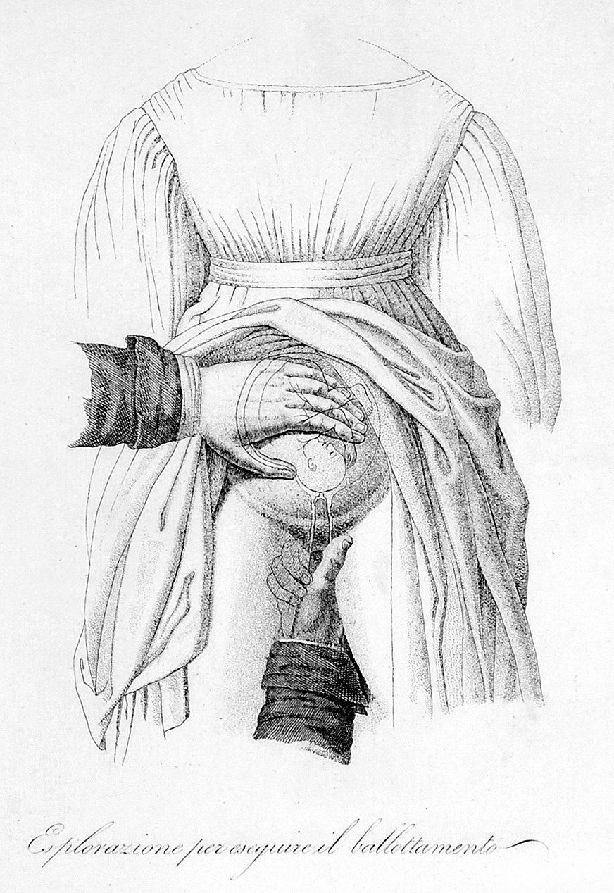 Morbid Anatomy: Internal Medical Examination of a Woman, Circa 1800