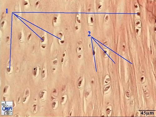 figura5_cartilagem