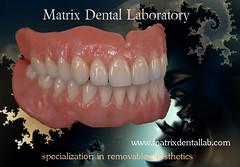 Cost Of Upper Dentures Dental Implants Cost