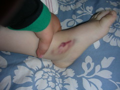 bruise (Lateral Support) Tags: bruise hemophilia