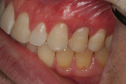 Cavities-filled