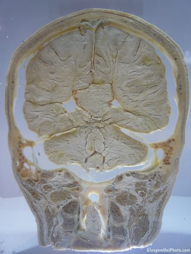 Cross-Section of a Human Brain at the Hunterian