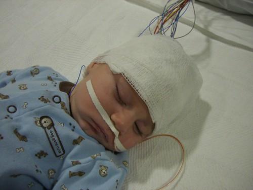 2-17-09-EEG-4