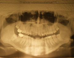 Mah Toofers (pam sattler) Tags: jaw teeth xray cavity crown bone root dentist nasal filling cavities