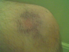 My knee today. (evil robot 6) Tags: ouch bruise knee phonepost