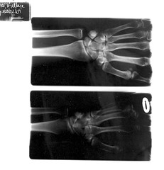 Ganglion Cyst Xrays - Right Wrist (klvinci) Tags: right xray wrist cyst ganglion