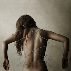spinal fixation (brookeshaden) Tags: selfportrait metal back iron skin walk surgery perform spine hang brace reveal nikond80 brookeshaden spinalfixation