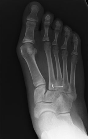 Lisfrancs Injury on X-ray