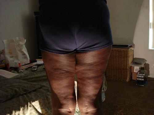 black cellulite ass