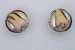 Cufflinks, top view