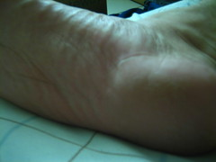 Day 105 - My feet hate it... (CharlieBoy808) Tags: old feet hawaii pain peeling grandpa days heel honolulu 365 wrinkle sore makiki charlieboy808