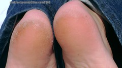 la6332 (foot journal) Tags: feet fetish toes bare heels rough soles solas 2010 fetiche fot sula tenen sohlen semelles callousedheels feticcio fse fotsula parkfootjournallivecom