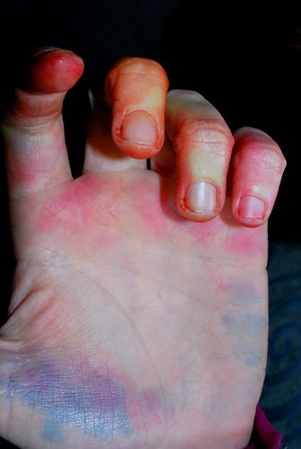tie-dye hands