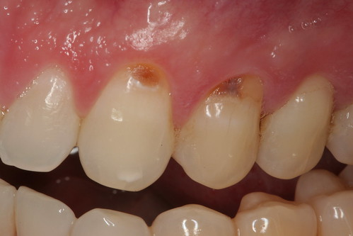 Dental care in an emergency – 4/21/12