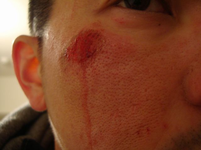 scar...