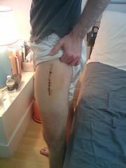 day 4 -  frankenstein leg (MacQ) Tags: broken hospital skateboarding leg injury surgery stitches skateboard bone hip femur staples orthopedic