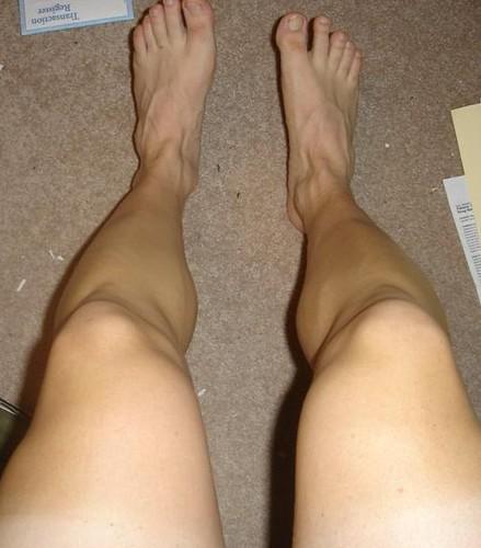 Legs 002